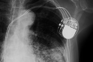 Implantable Medical Device