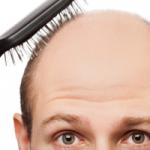Hairbrush Bald
